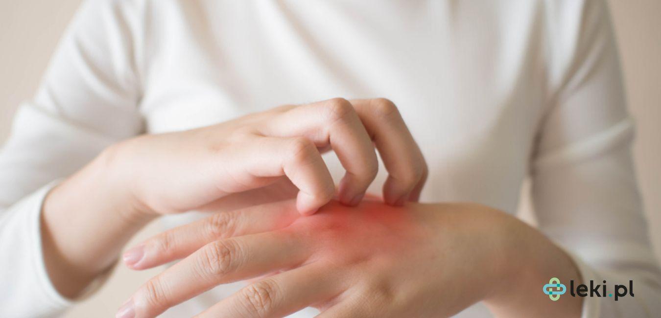Czy preparaty wapnia sąskuteczne w leczeniu alergii? (fot. Shutterstock)