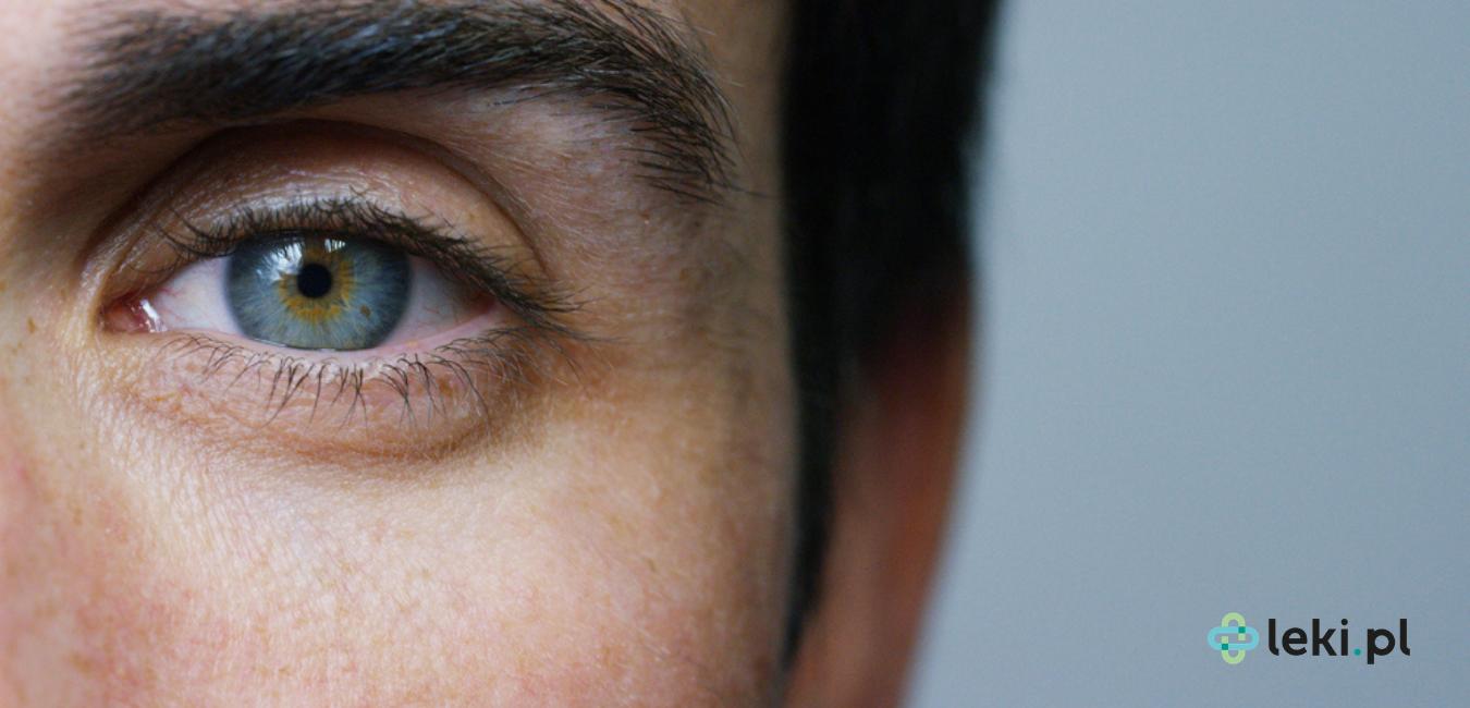 Drżenie powiek to zwykle mało niebezpieczna dolegliwość, która potrafi zmniejszyć komfort życia codziennego. Poznaj przyczyny schorzenia i drogę leczenia. (fot. Shutterstock)