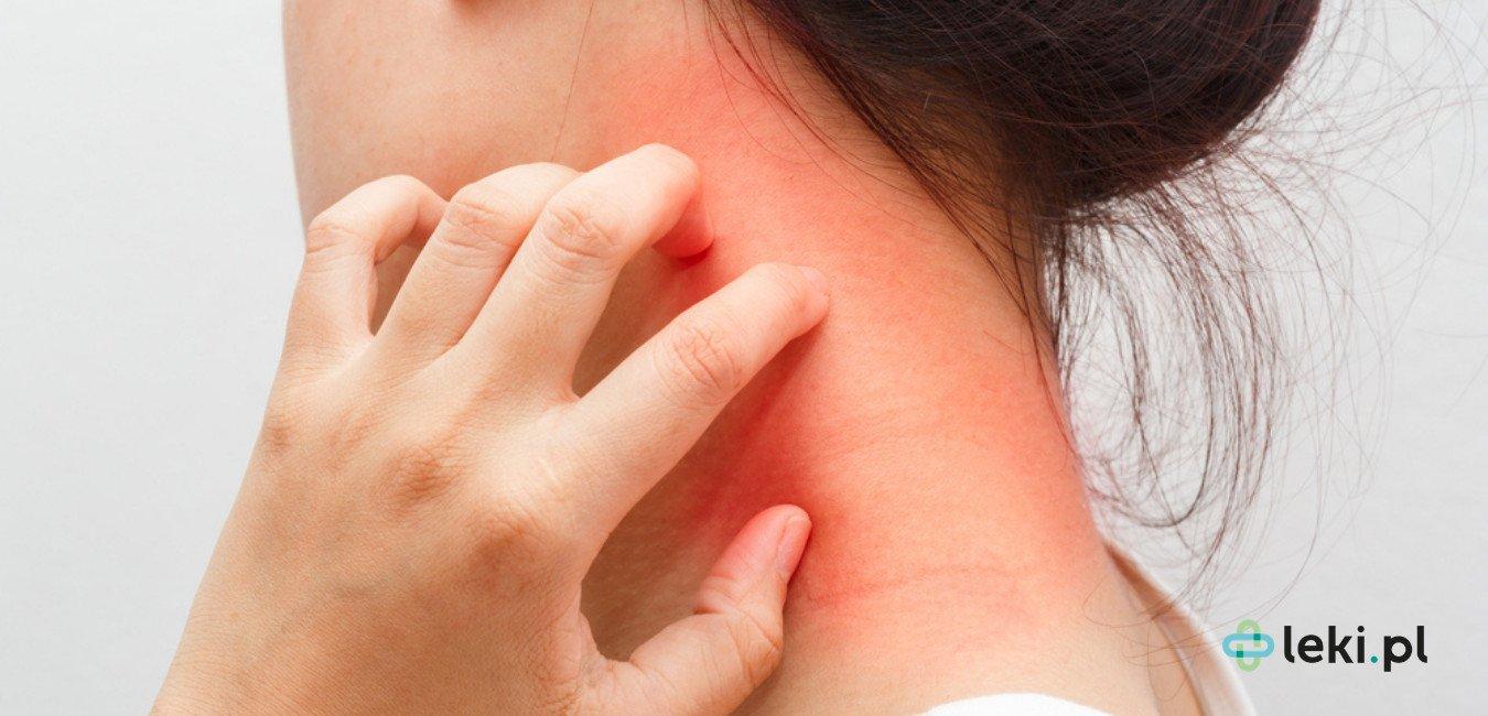 Na AZS cierpią zarówno dzieci, jak i dorośli. (fot. Shutterstock)
