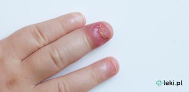 Zanokcica — przyczyny oraz leczenie