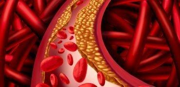 Nowy lek na hipercholesterolemię