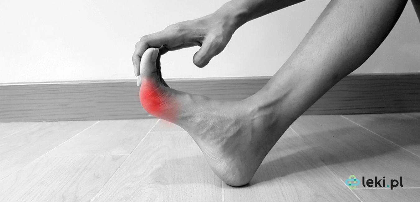 Dna moczanowa jest zaliczana do chorób reumatycznych, wiąże się z nawracającym zapaleniem stawów i ostrym bólem. Warto znać metody leczenia. (fot. Shutterstock)