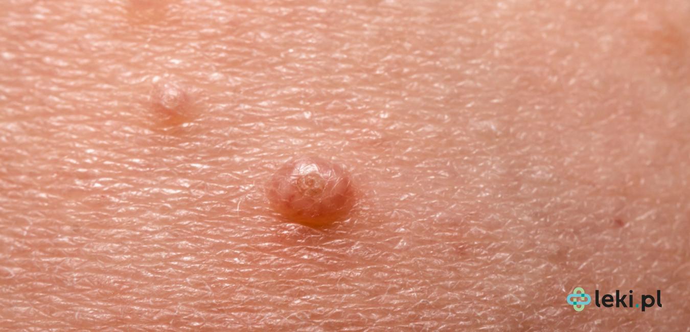 Mięczak zakaźny to choroba skórna często o długotrwałym przebiegu. Zapoznaj się z zasadami leczenia i możliwościami ochrony przed chorobą. (fot. Shutterstock)
