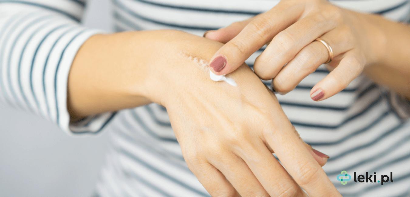 Oparzenia bardzo często towarzyszą nam w codziennym życiu. Jakie więc preparaty pozwolą zredukować ból, a jakie wspomogą regenerację rany? (fot. Shutterstock)