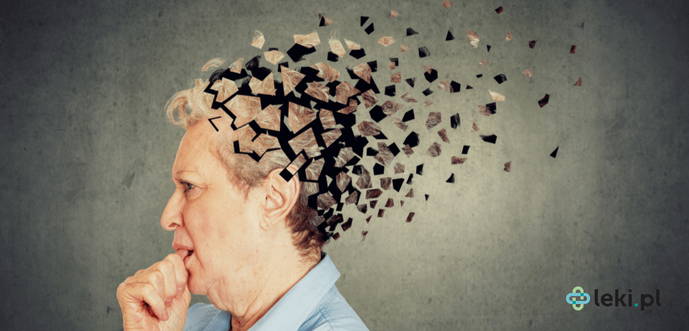 Choroba Alzheimera to schorzenie neurodegeneracyjne. Jak dotąd nie ma leku zwalczającego jego przyczynę. Czym jest aducanumab? (fot. Shutterstock)