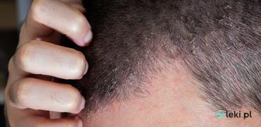 Łojotokowe zapalenie skóry (ŁZS) — co to za choroba?