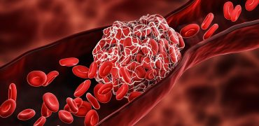 Pierwszy doustny lek rozrzedzający krew zatwierdzony dla dzieci