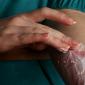 Lawaseptyki — środki pierwszego użycia w postępowaniu z raną