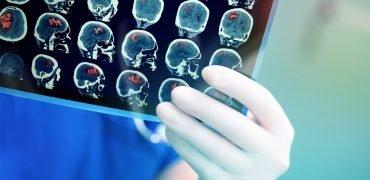 Asymetria tętnic mózgowych może zwiększać ryzyko udaru